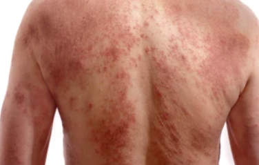 Steroid Withdrawal Effects Long-Term Topical Corticosteroid Use