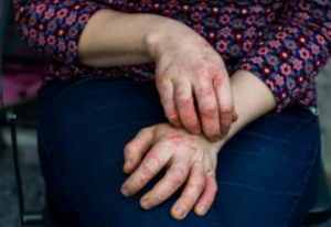 Bad eczema flare-ups may be caused by strains of bacteria